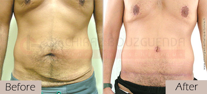 Tummy-tuck-before-after-abroad-tunisia-patient6