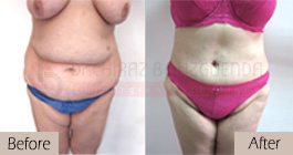 Tummy-tuck-before-after-abroad-tunisia-patient7