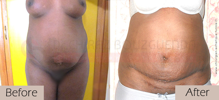 Tummy-tuck-before-after-abroad-tunisia-patient9